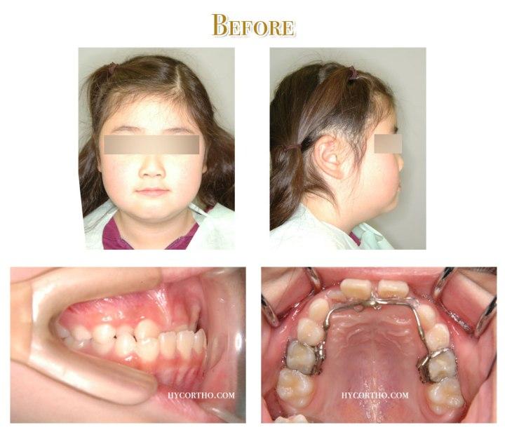 矯正前臉部正面、側面、口內、舌側弧線矯正裝置