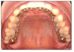 圖三 A,3M Incognito舌側矯正口內觀