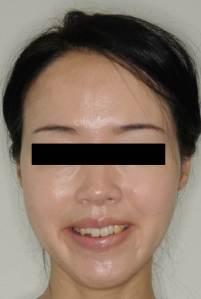 圖三B,3M Incognito舌側矯正治療中外觀