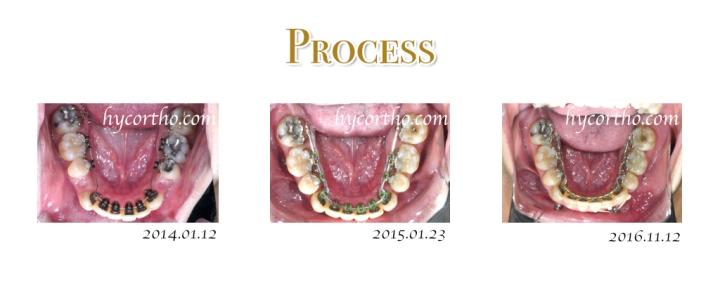 隱藏式舌側矯正治療過程