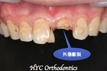 病人撞斷的左上正中的門牙