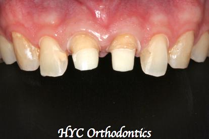 病人因此下定決心,一次把前面四顆門牙都美化