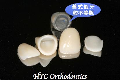 中間兩顆是全瓷牙冠,旁邊兩顆是瓷牙貼片