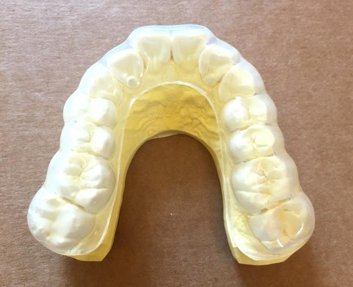 牙齒被牙套整個包覆住