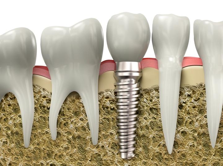 人工植體植牙