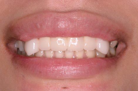 「八重齒」就是虎牙的意思