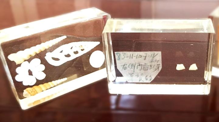 牙齒也能像貝殼一樣保存起來變裝飾紀念品喔!