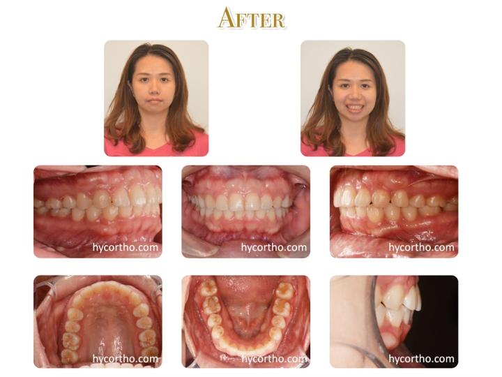 黃郁芩醫師 牙齒矯正案例 矯正後