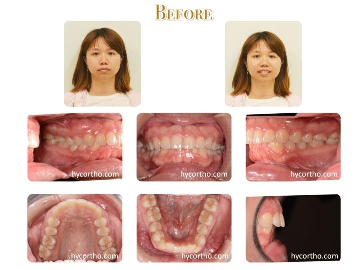 黃郁芩醫師 牙齒矯正案例 矯正前