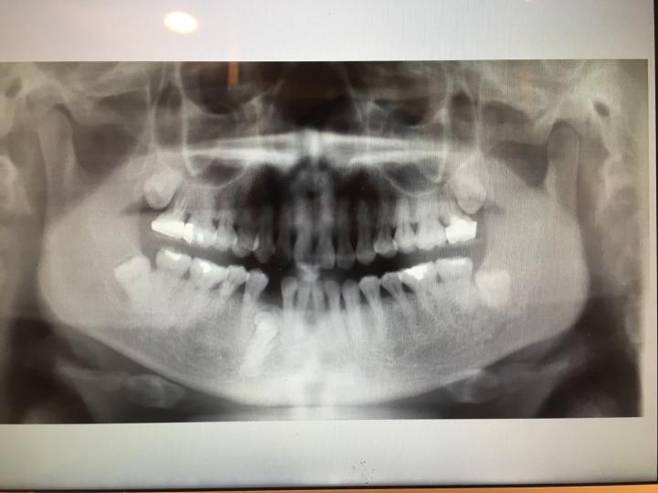 右下犬齒被擋住