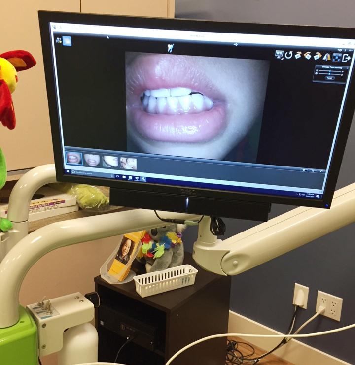 電視直播 - 用相機直播到螢幕上,讓小朋友清楚看到自己的牙齒