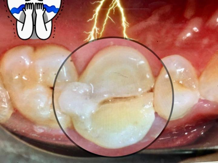 牙齒裂太嚴重...