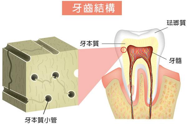 牙本質是構成牙齒主體的微黃色組織,位於牙齒表層的琺瑯質下面。(Shutterstock)